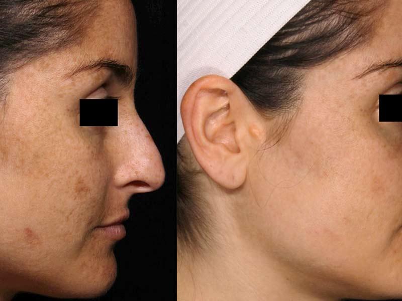 pigment in het gezicht