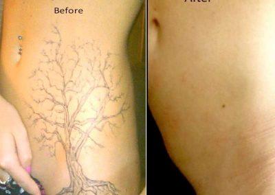 tatoeage verwijdering