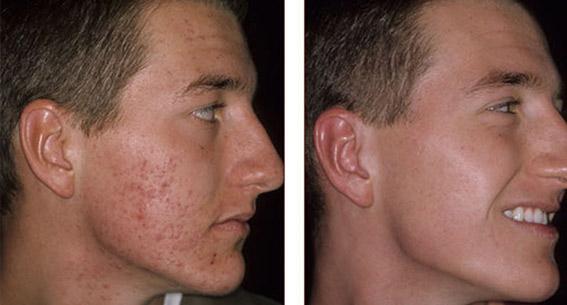 Acne vermindering/verbetering