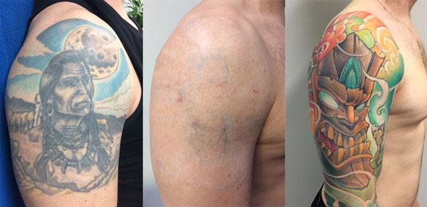 Tattoo Verwijderen Veilig Snel En Pijnloos Lasercentrum
