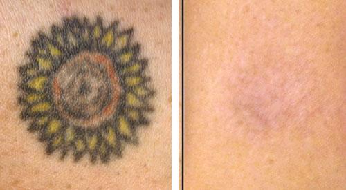 Tattoo verwijderen voor en na