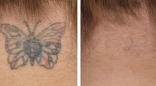 Tattoo verwijderen nek